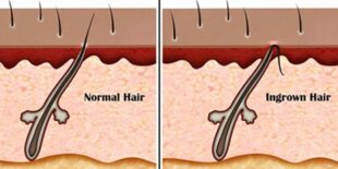 Ingrown Hair on HeadScalp Causes, Symptoms, Treatment