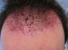 Ingrown Hair on Head/Scalp Symptoms