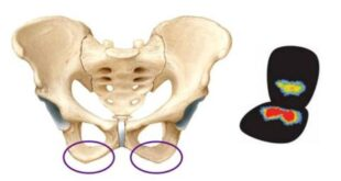 Ischial Tuberosity Syndrome Pain, Pictures, Treatment
