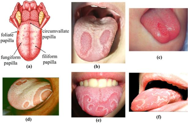 Geographic Tongue Pictures