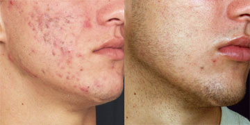 Sebaceous Hyperplasia Photos