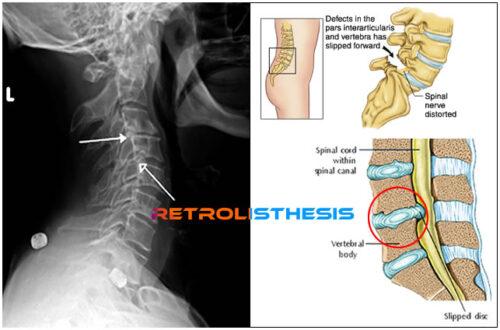 and retrolisthesis