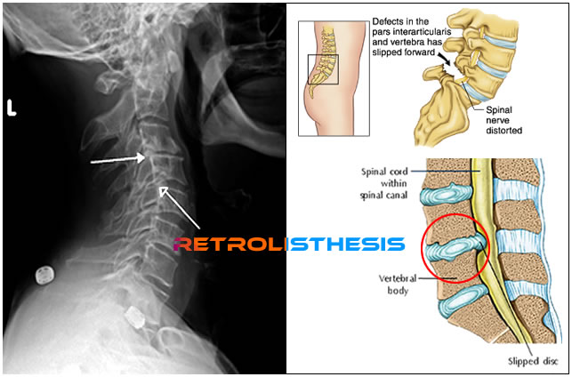 grade 1 retrolisthesis of c4