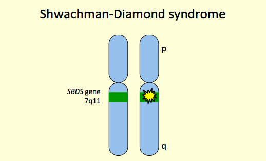 Shwachman-Diamond Syndrome (SDS), Causes, Treatment, Life Expectancy
