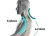 Cervical Lordosis - Loss, Reversal, Treatment
