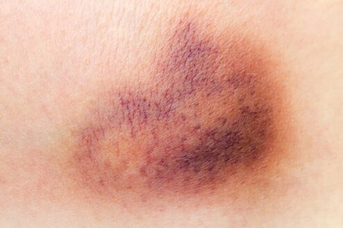 How to get rid of Bruises fast in 24 hours