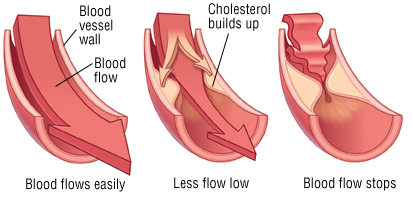Pure Hypercholesterolemia Definition, Symptoms
