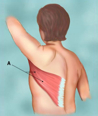 Latissimus Dorsi - Muscle Pain, Function, Exercises