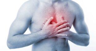 Substernal Chest Pain - Diagnosis, Symptoms, Treatment