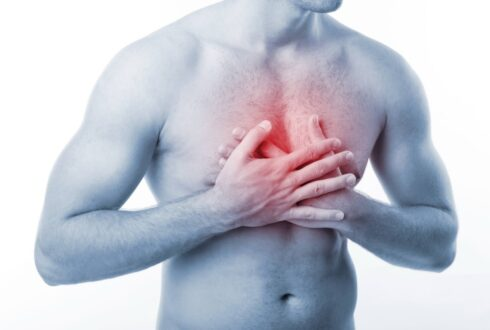Substernal Chest Pain - Diagnosis, Symptoms, Treatment