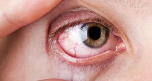 What is Sicca syndrome - Definition, Symptoms, Causes, Diagnosis, Treatment