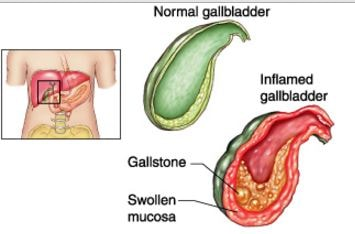 Acalculous cholecystitis Symptoms, Pathophysiology, Causes, Treatment