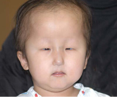 (HSS) Symptoms, Cause, Diagnosis, TreatmentHallermann-Streiff syndrome