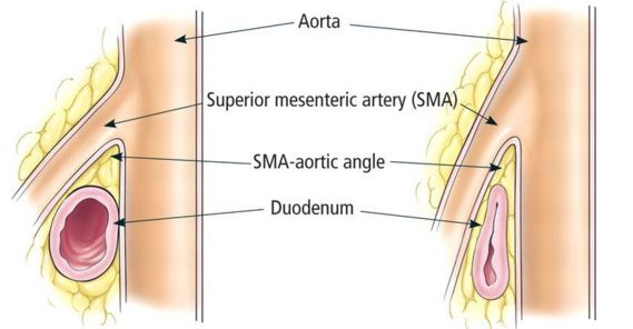 SMAS- Superior Mesenteric Artery Syndrome Symptoms, Treatment