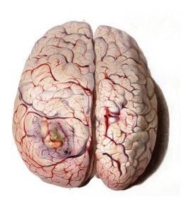 Metabolic encephalopathy Symptoms, Complications, Causes, Treatment