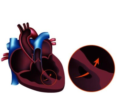 Holosystolic Murmur Symptoms, Causes, Sound, Treatment