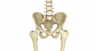 Platypelloid Pelvis Definition, Symptoms, Causes, Treatment