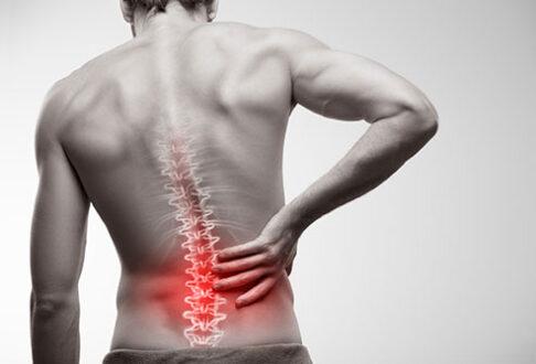 Dural Ectasia Headaches, Symptoms, Causes, Treatment