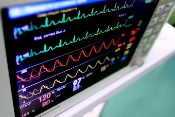 Ballistocardiography Sleep Monitor, Cardiac Output, Mechanism