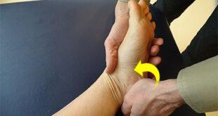 Baxter's Neuropathy Symptoms, Causes, Treatment