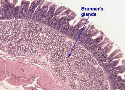 Brunner's gland Hyperplasia Symptoms, Causes, Cancer, Treatment
