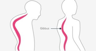 Gibbus Deformity Definition, Symptoms, Causes, Treatment