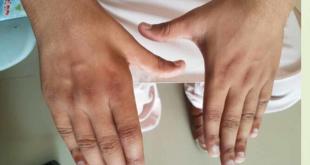 Hirayama's Disease Symptoms, Causes, Treatment, Life expectancy