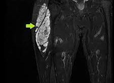 Myxoid chondrosarcoma Stages, Prognosis, Treatment, Life expectancy