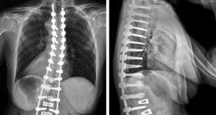 Proximal junctional kyphosis Symptoms, Causes, Treatment