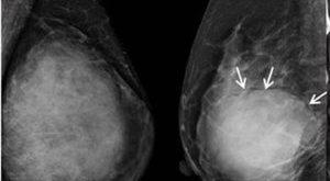 Phyllodes tumor vs Fibroadenoma Symptoms, Causes, Diagnosis, Treatment