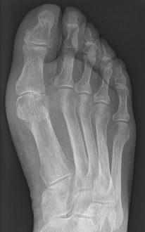 Saturnine Gout Mechanism, Symptoms, Causes, Treatment