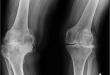 Windswept Deformity Location, Symptoms, Causes, Diagnosis, Treatment