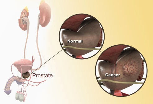 Prostate Diagram, Anatomy and Functions