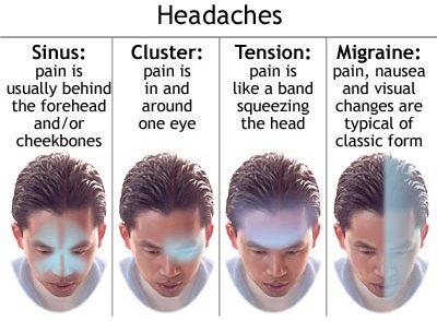 Headaches Types: Migraine, Tension, Cluster, Sinus