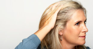 Seborrheic Dermatitis Scalp Treatment