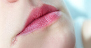 Angular Cheilitis Causes, Treatment and Home remedies