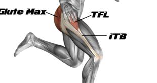 Tensor Fasciae Latae Pain Treatment and Exercises