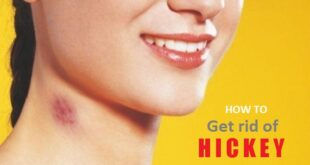 How to get Rid of Hickey on Neck, Lips, Chest Fast Overnight
