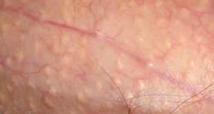 Fordyce Spots Symptoms, Causes, Treatment and Home Remedies