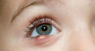 How to Get Rid of Stye on Upper/Bottom Eyelid