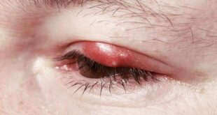 How-to-Get-Rid-of-a-Stye-Fast-overnight