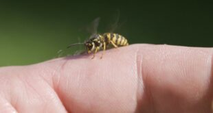 How to Treat Wasp Sting naturally at home