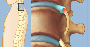 Lumbar Radiculopathy Symptoms and Treatment