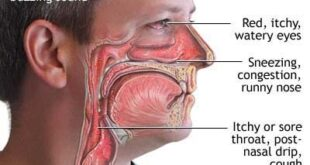 Post Nasal Drip Remedies for Kids, Babies and Toddlers