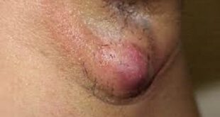 Painful Lump in Armpit