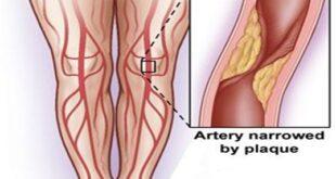 Intermittent Claudication Pain Treatment