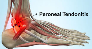 Peroneal Tendonitis Symptoms, Causes, Treatment at Home