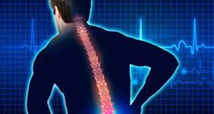 7244 Lumbosacral Neuritis Definition Symptoms Types Causes Treatment