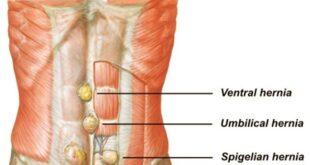 Spigelian Hernia Symptoms, Diagnosis, Treatment