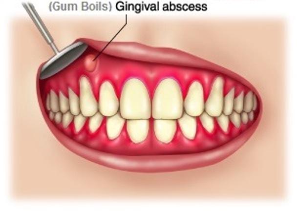Gum Boils (Abscess) Lump, Blister, Pimple Pictures and Treatment